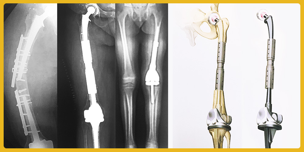 custom-made prosthesis